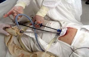 Пациентка Х. Положение порта и инструментов во время операции.