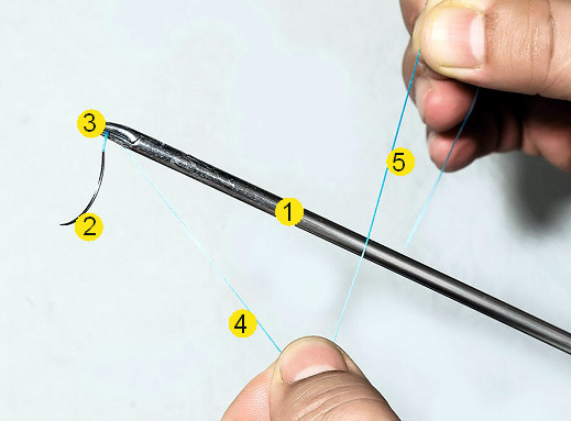 Формирование интракорпорального скользящего узла